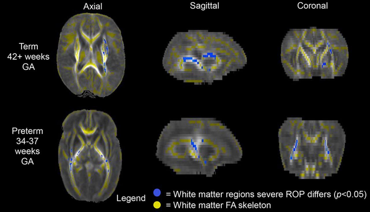 Severe retinopathy of prematurity predicts delayed white matter ...