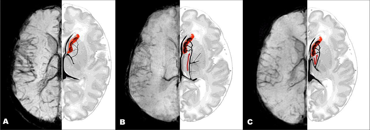 Colorful Anatomy Ct Brain Crest - Anatomy Ideas - yunoki.info