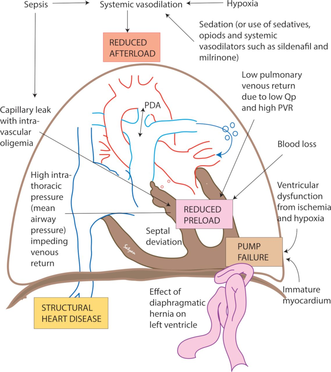 Management of systemic hypotension in term infants with persistent  pulmonary hypertension of the newborn: an illustrated review | ADC Fetal &  Neonatal Edition