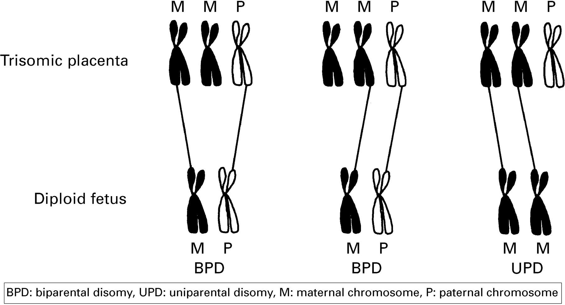 (3): F223 -- ADC - Fetal