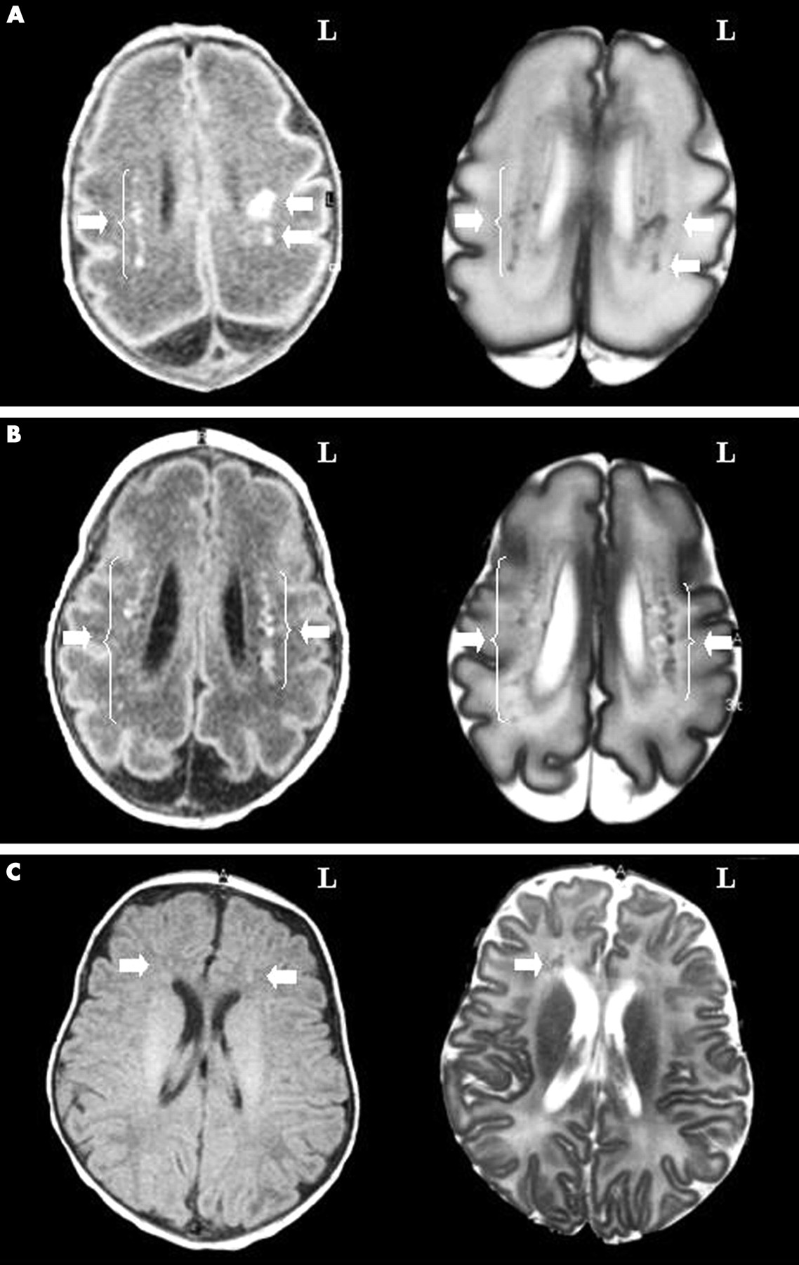 magnetic resonance imaging of the infant brain anatomical