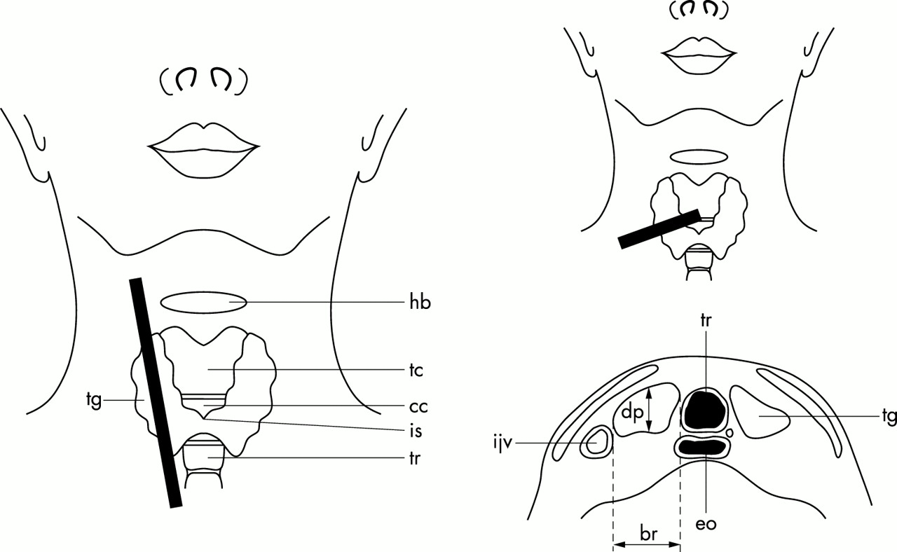 ultrasound of the thyroid gland in the newborn  normative