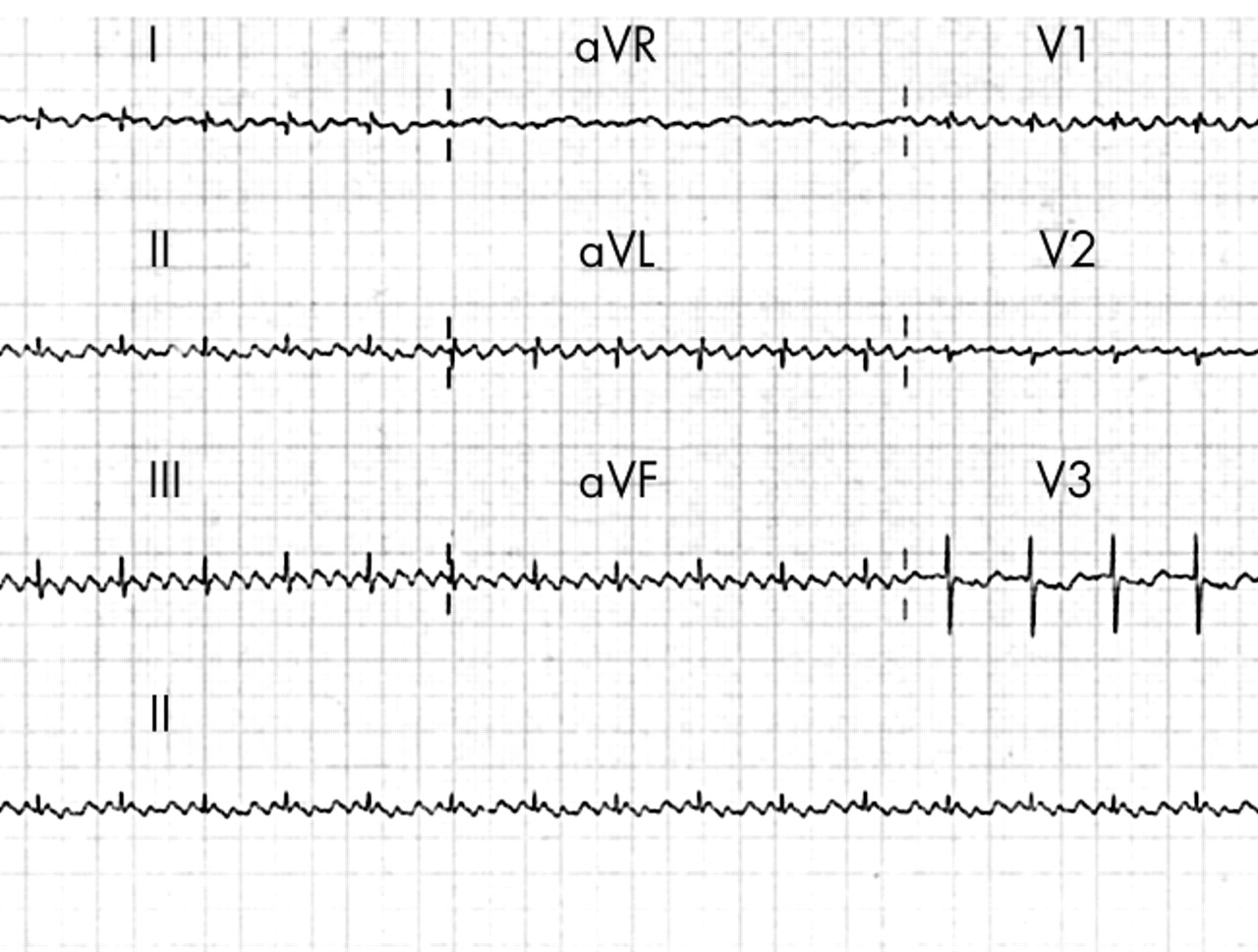 Atrial flutter in preterm babies   ADC Fetal & Neonatal Edition