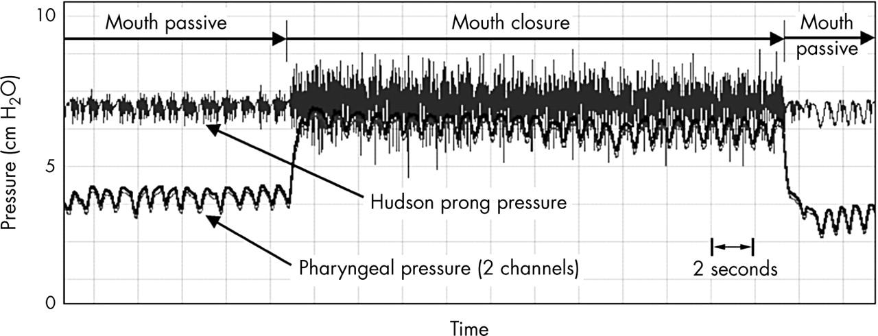 Pharyngeal pressure in preterm infants receiving nasal