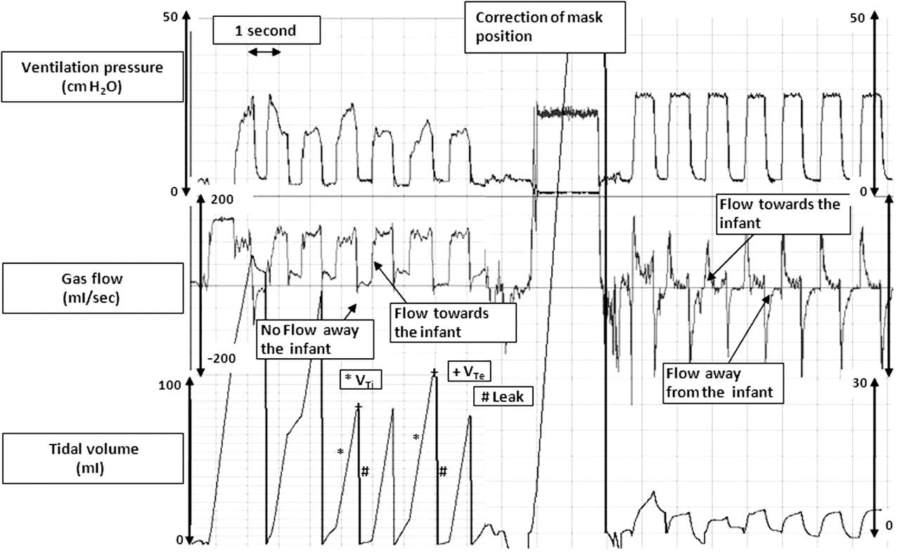 textbook of neonatal resuscitation pdf