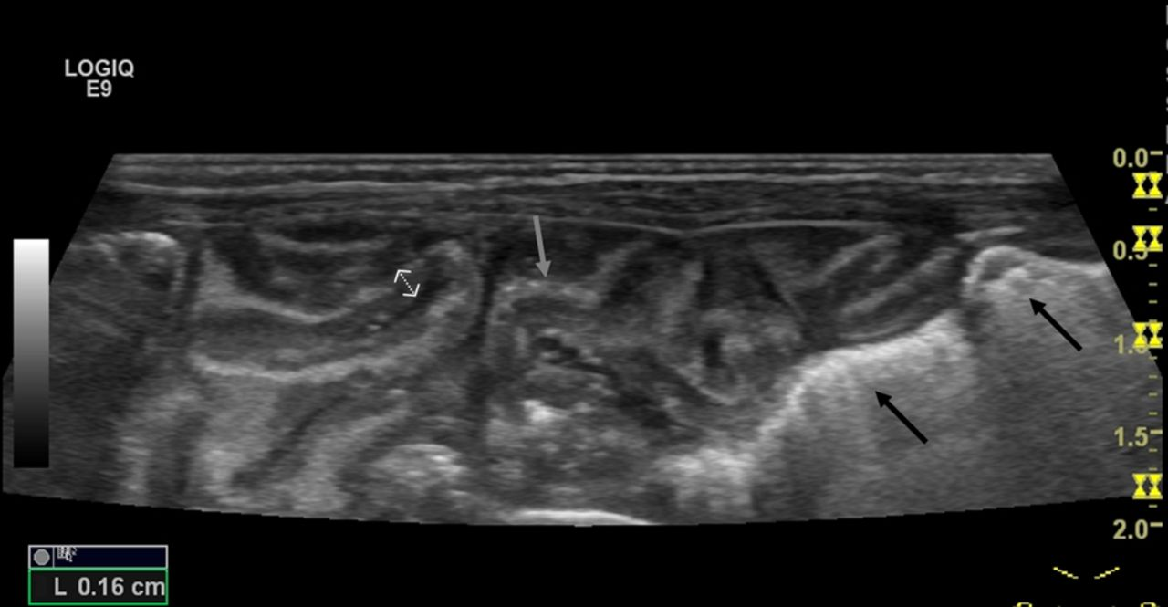 Usefulness Of Abdominal Ultrasound In Diagnosing