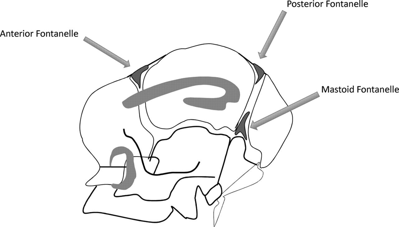 Ultrasonically Detectable Cerebellar Haemorrhage In Preterm Infants
