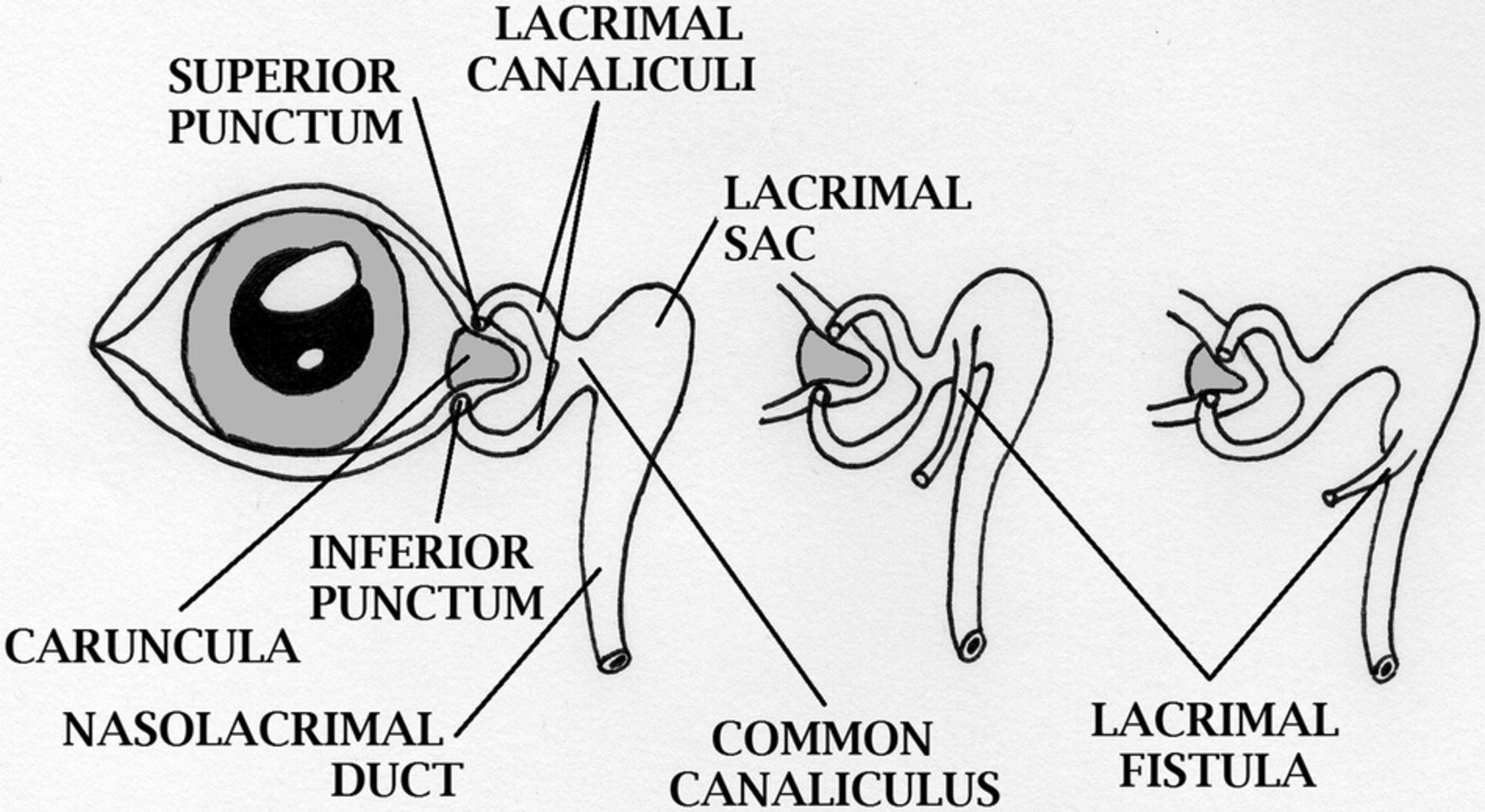 Congenital lacrimal fistula | ADC Fetal & Neonatal Edition