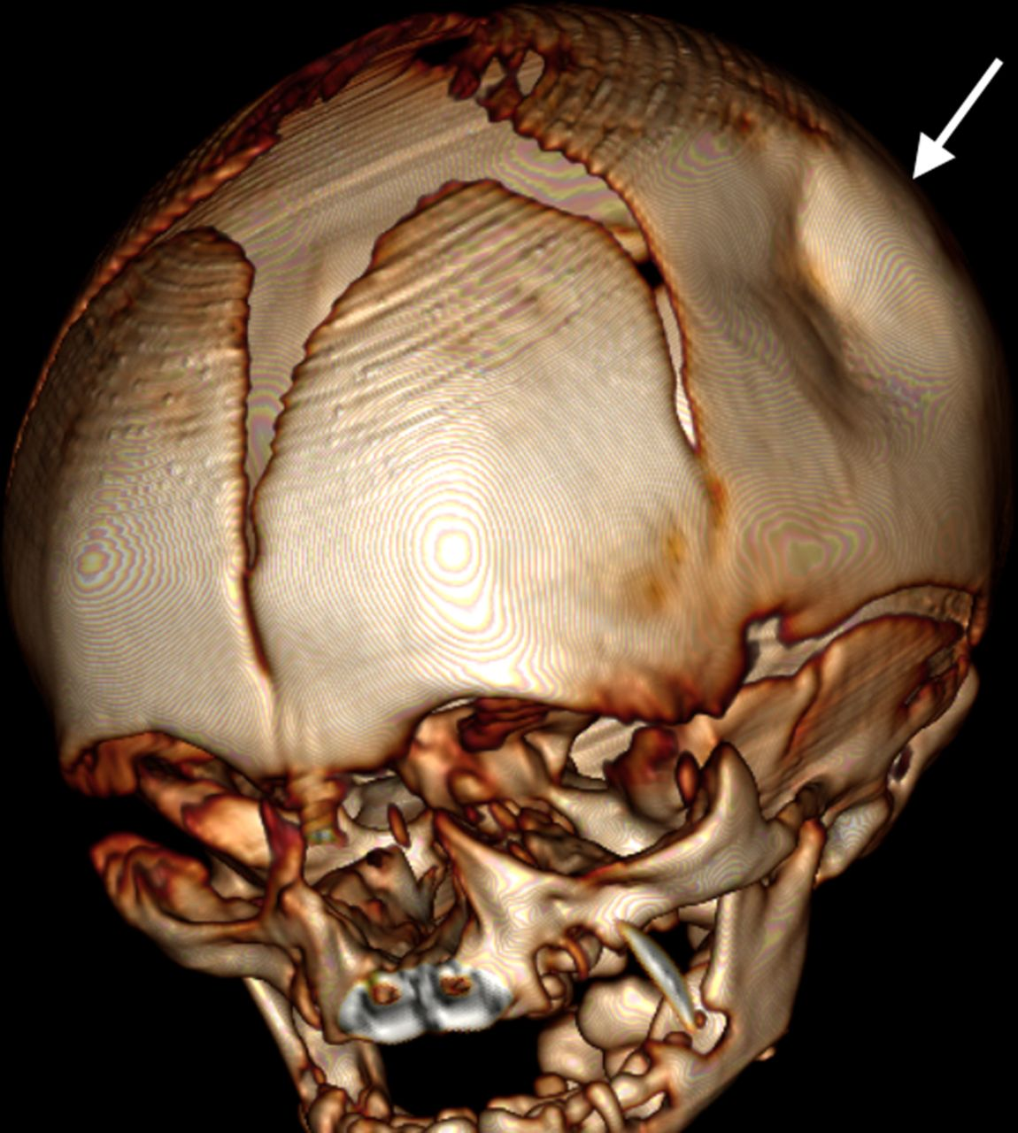 Spontaneous ping-pong parietal fracture in a newborn | ADC Fetal ...
